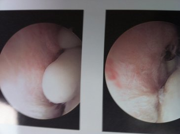 Arthroscopic view of loose bodies
